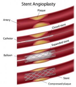 Artery Treatments
